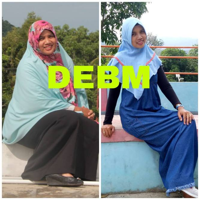 foto DEBM before after